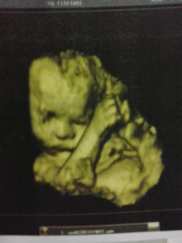 USG 4D - Bayi Andi & Fitri